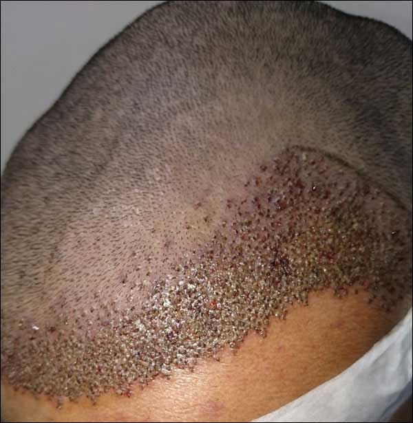 FUE-Hair-Transplant-Surgery-Face-Value-clinic-Patient-1-12