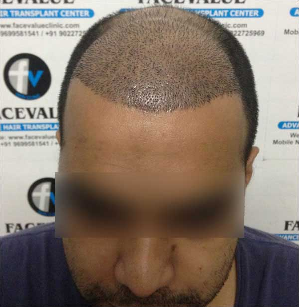 Hair Transplant Before After Pictures Face Value Clinic