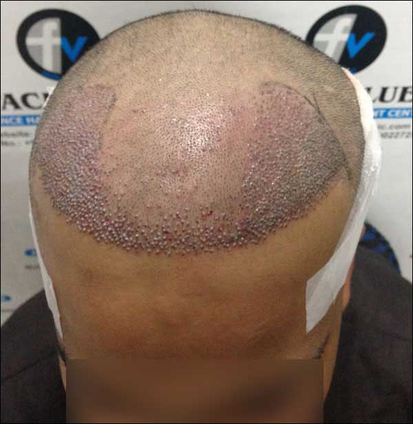 FUE-Hair-Transplant-Surgery-Face-Value-clinic-Patient-1-15
