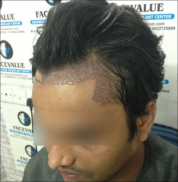 FUE-Hair-Transplant-Surgery-Face-Value-clinic-Patient-1-17