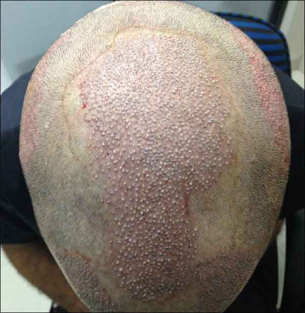 FUE-Hair-Transplant-Surgery-Face-Value-clinic-Patient-1-18