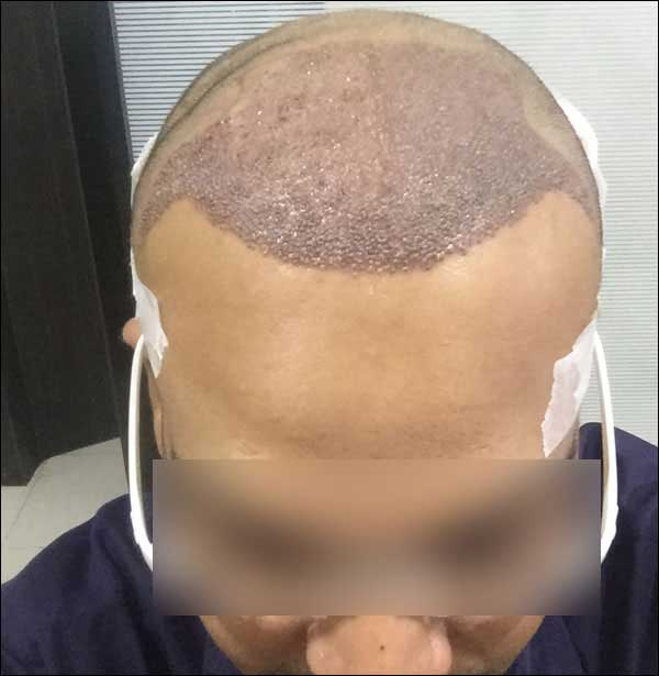 FUE-Hair-Transplant-Surgery-Face-Value-clinic-Patient-1-19