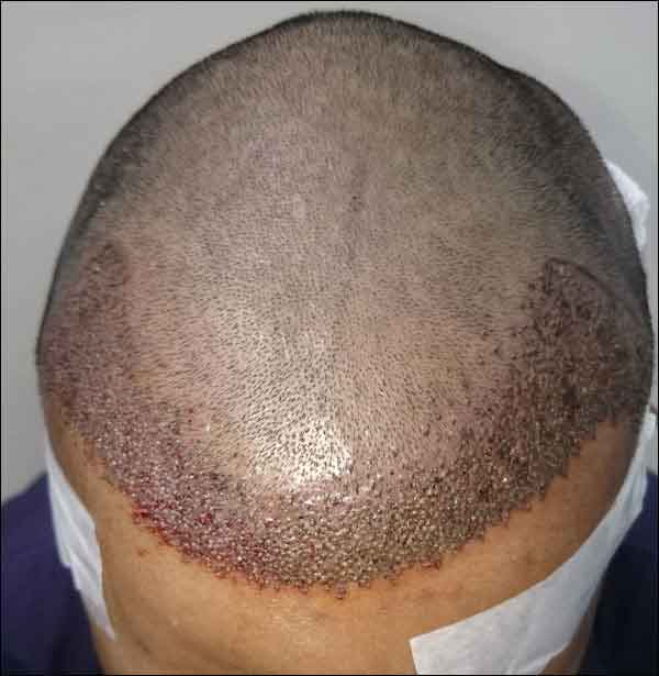 FUE-Hair-Transplant-Surgery-Face-Value-clinic-Patient-1-4