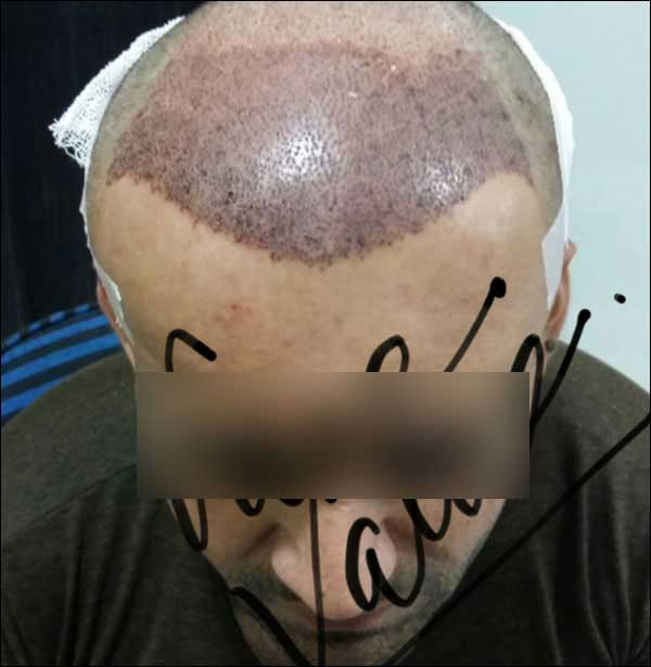 FUE-Hair-Transplant-Surgery-Face-Value-clinic-Patient-1-5