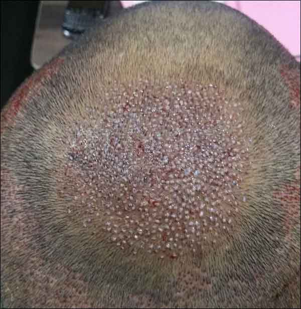 FUE-Hair-Transplant-Surgery-Face-Value-clinic-Patient-1-6