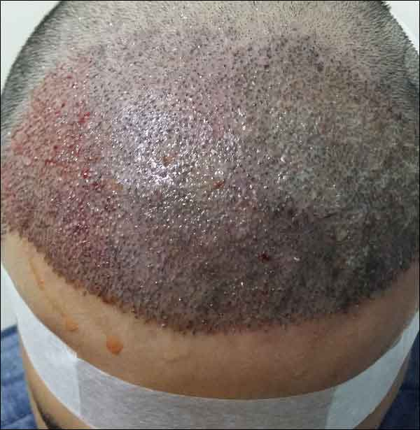 FUE-Hair-Transplant-Surgery-Face-Value-clinic-Patient-1-7