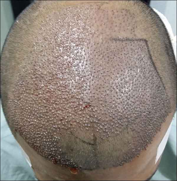 FUE-Hair-Transplant-Surgery-Face-Value-clinic-Patient-1-8