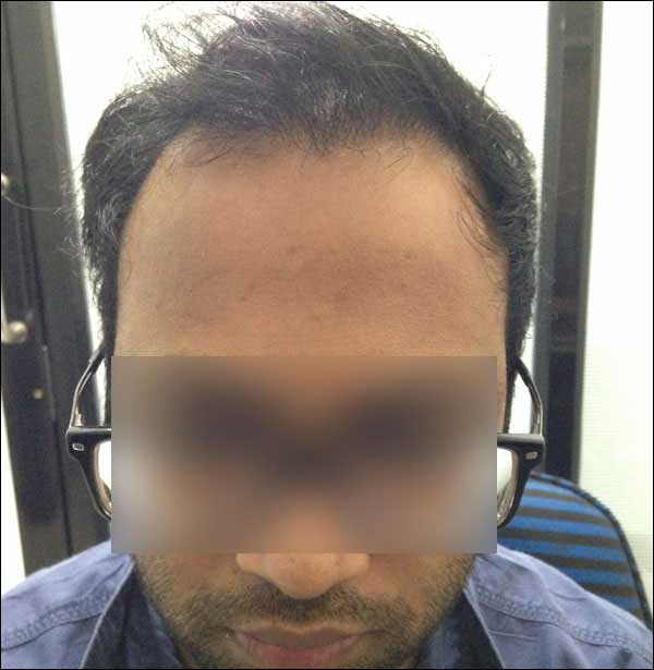 FUE-Hair-Transplant-Surgery-Face-Value-clinic-Patient-4-1