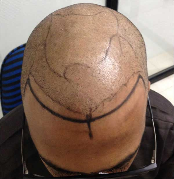 FUE-Hair-Transplant-Surgery-Face-Value-clinic-Patient-4-2