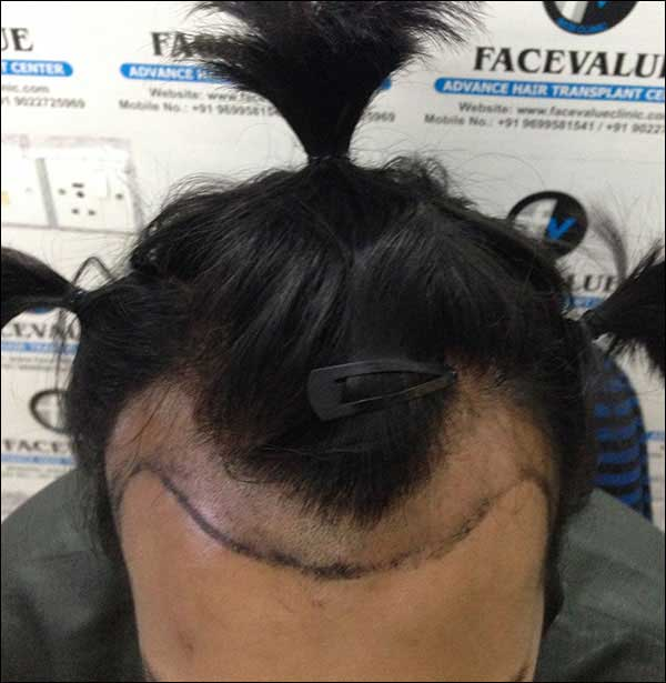 FUE-Hair-Transplant-Surgery-Face-Value-clinic-Patient-9-1