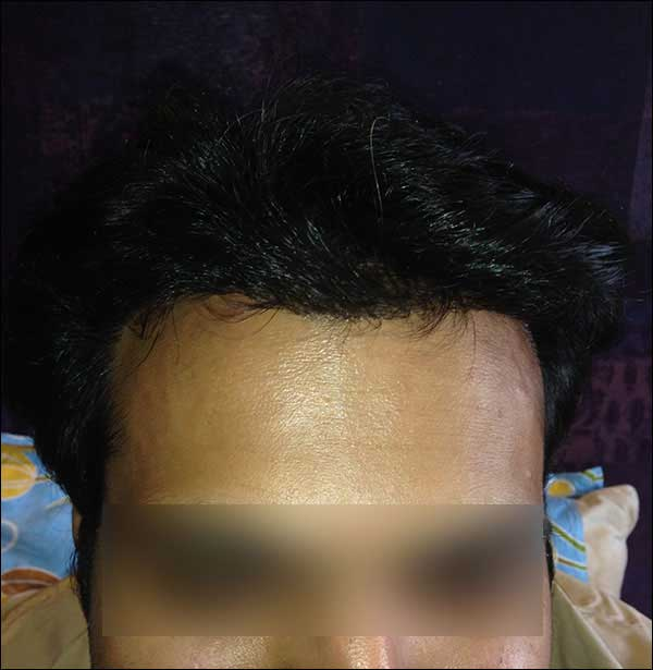 FUE-Hair-Transplant-Surgery-Face-Value-clinic-Patient-9-3