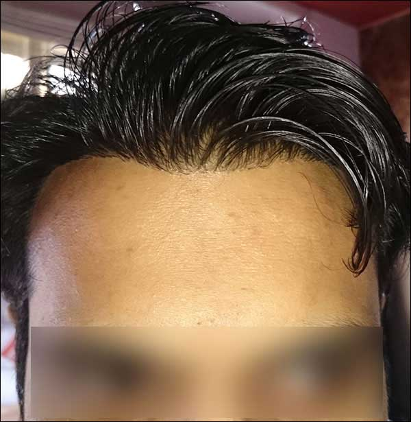 FUE-Hair-Transplant-Surgery-Face-Value-clinic-Patient-9-4