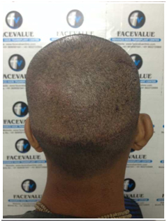 After-DHI-Direct-Hair -Implantation-Hair-Transplant-in-Mumbai-Face-Value-Clinic