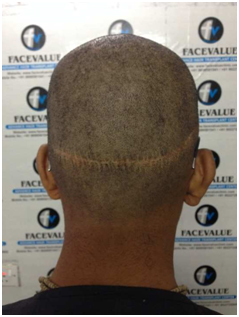 Before-DHI-Direct-Hair -Implantation-Hair-Transplant-in-Mumbai-Face-Value-Clinic