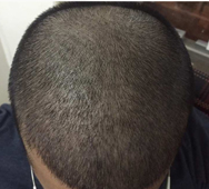 During-Hair-Transplant-surgery-direction-2-face-value-hair-transplant-clinic-in-mumbai