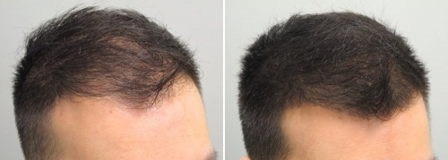 Jack willems - i have done hair transplant treatment from Face Value clinic 6 months back
