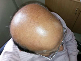 Poor-donor-area-case-1-b-face-value-hair-transplant-clinic-in-mumbai-india