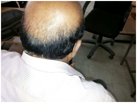 Poor-donor-area-case-1-face-value-hair-transplant-clinic-in-mumbai-india