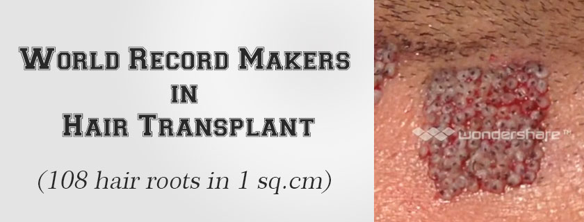World record hair transplant maker | face value clinic hair transplant in mumbai