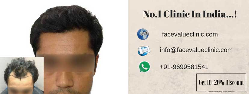 best hair transplant clinic in mumbai | face value clinic
