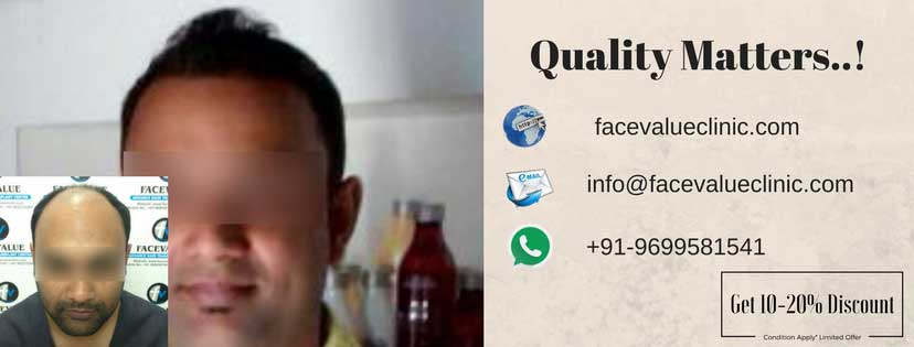 best hair transplant quality in mumbai india | facevalueclinic.com