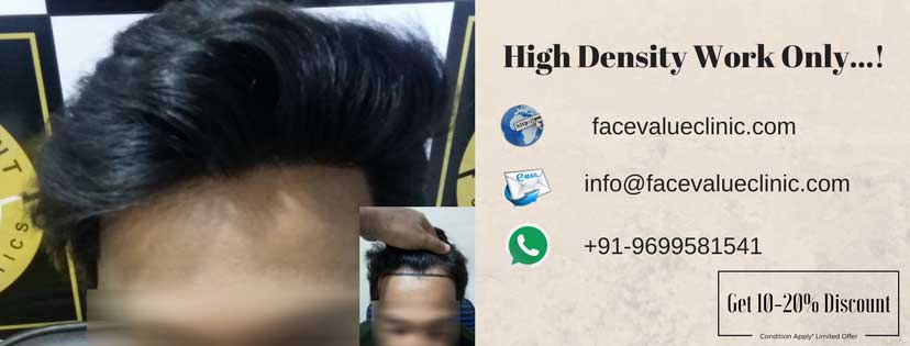 high density hair transplant | face value clinic 4