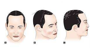 ur-photo-evaluation-hair-transplant-clinic-in-mumbai-face-value-1