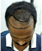 ur-photo-evaluation-hair-transplant-clinic-in-mumbai-face-value-2